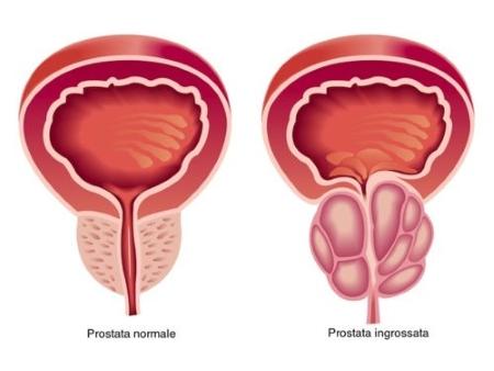 prostata normale e ingrossata