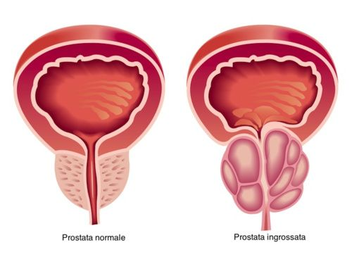 prostatite normale e ingrossata