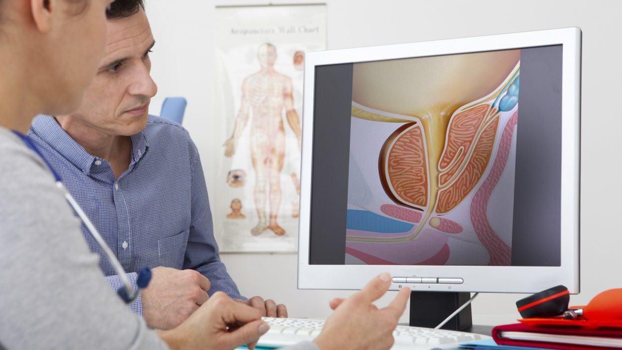 Prostatite: Cause, Sintomi e Rimedi