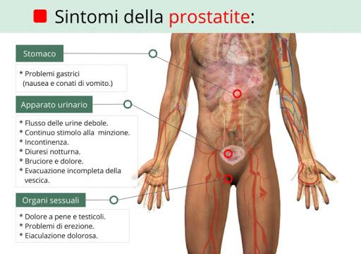 sintomi prostatite