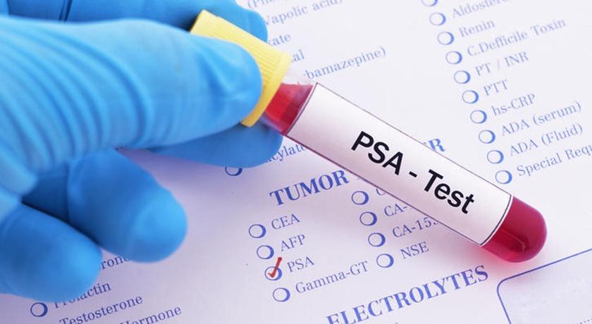 Come prepararsi al test del PSA